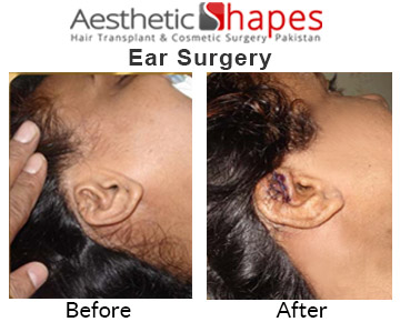 ear-surgery-before-after
