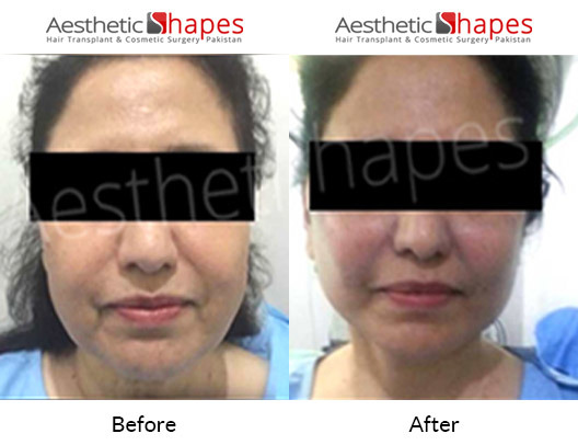 Facelift-surgery-karachi-before-after