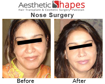 nose-surgery-before-after