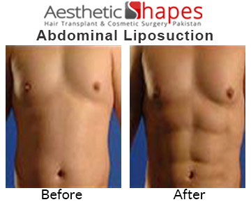 abdominal-liposuction-after-before