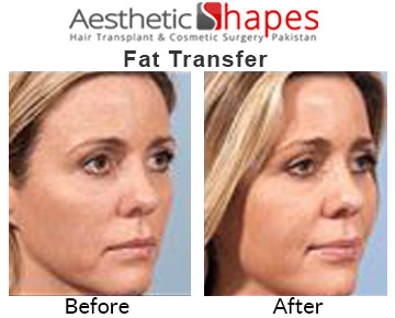 fat-transfer-before-and-after
