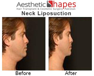 Chin Liposuction in Karachi, Pakistan   Neck Liposuction in Pakistan