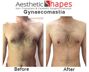 Gynecomastia Surgery in Karachi, Pakistan | Male Breast Surgery