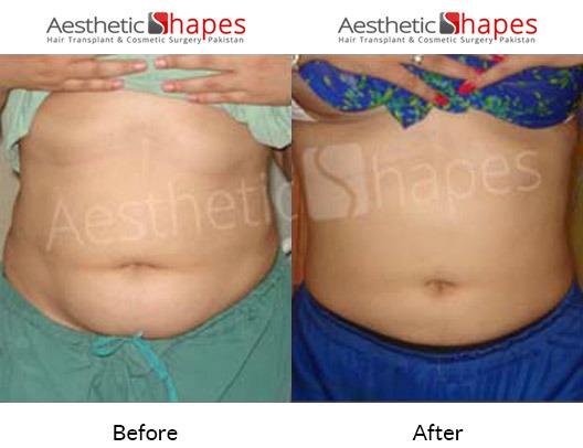 Liposuction in Karachi | Best Liposuction Cost in Pakistan