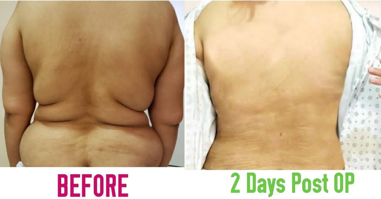 Bra Roll Back Liposuction