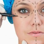 Surgical Facelift With Fat Grafting, face lift, doctor marking the face
