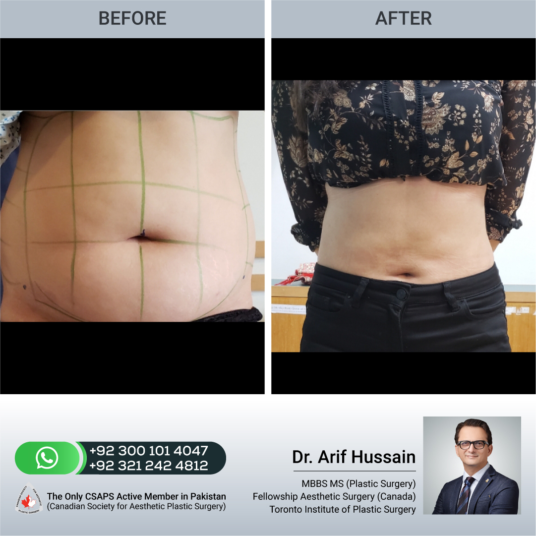 Liposuction before and after front,